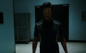 Agents of SHIELD s1 ep05--Chan Ho Yin with burned arms